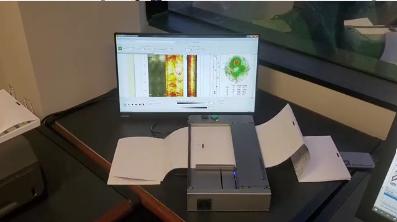 neurascanner video